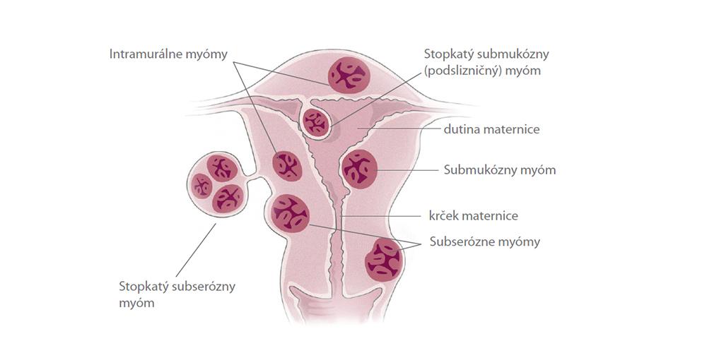 myom menstruacia